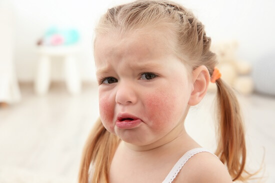 Sensitive skin in children -  what can you do?